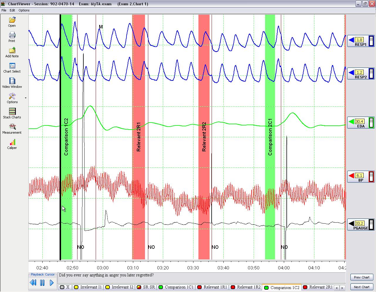 Confirmed Polygraph Countermeasure Case Documentation